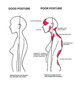 Poor Posture due to incorrect breathing